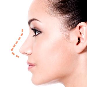 نکات مهم در جراحی زیبایی بینی