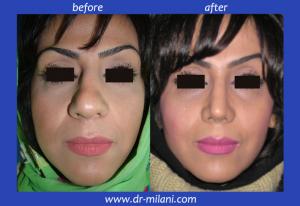 P1010031 1 300x206 - عمل بینی گوشتی