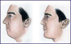 chin 1 300x188 - عملية جراحية الذقن والخد