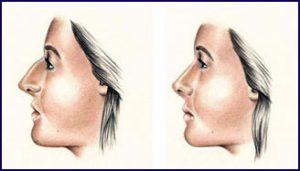 rhinoplasty1 300x171 - عملية جراحية الأنف