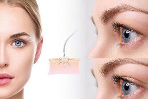 11 300x200 - راهنمایی درمورد جراحی زیبایی پلک یا بلفاروپلاستی