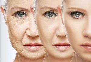 five types of facial wrinkles and treatment banooyeshahr 300x206 - همه چیز در مورد کشیدن پوست صورت یا لیفتینگ