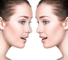 images 2 - هر آنچه که باید در مورد جراحی زیبایی بینی بدانید