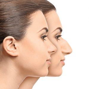 بینی استخوانی 300x300 - جراحی بینی استخوانی و توصیه های مرتبط با آن