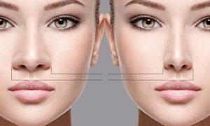 Rinoplastia por Cirujano 300x180 - همه چیز درمورد جراحی زیبایی بینی های گوشتی