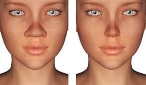 images 7 1 - جراحی بینی گوشتی_ نتیجه عمل بینی گوشتی